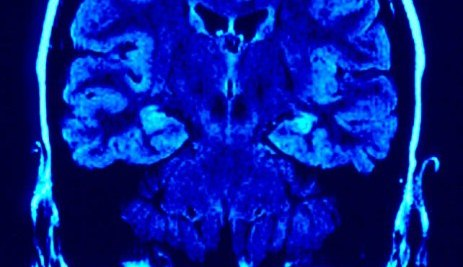 "Depression ""common in early Parkinson's"""