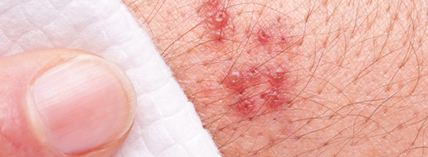 Shingles is an infection caused by the same virus that causes chickenpox.